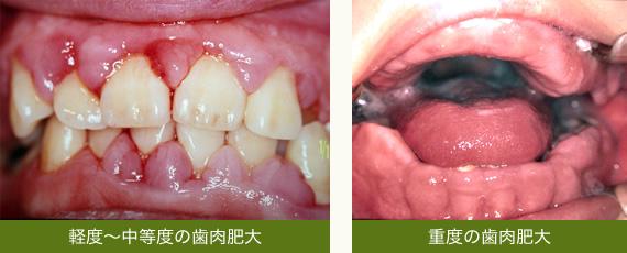の 市販 歯茎 薬 腫れ に 効く
