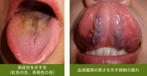 舌先 の しびれ